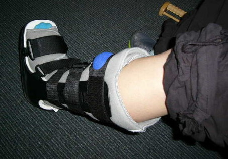 ブーツ。足関節を動かさないように固定するもの