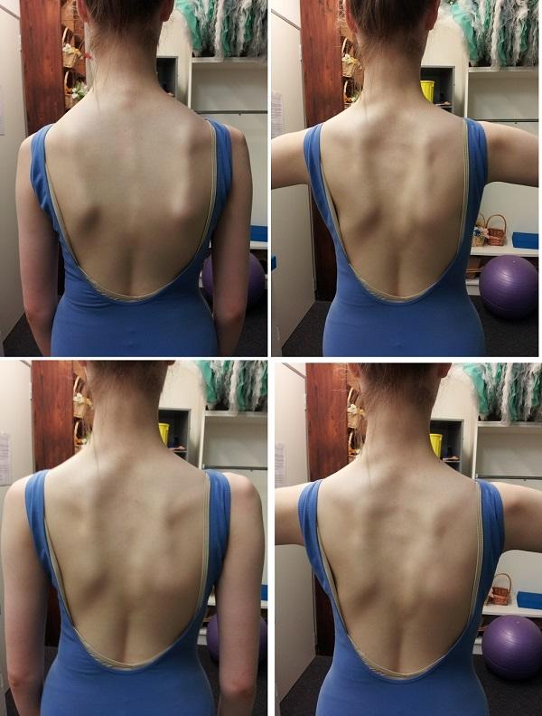 側彎の例:上の2枚が普通のポーデブラ、下の2枚が肩の意識をしたポーデブラ 100%でなくても肩甲骨が中に入り、肩が開かれて背骨が伸びているのも見える