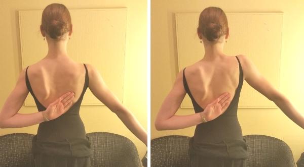 肩甲骨のウイング修復エクササイズ(ダンサーの翼状肩甲骨)